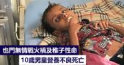 也門戰亂禍及40萬兒童營養不良 10歲男孩死時僅重10公斤