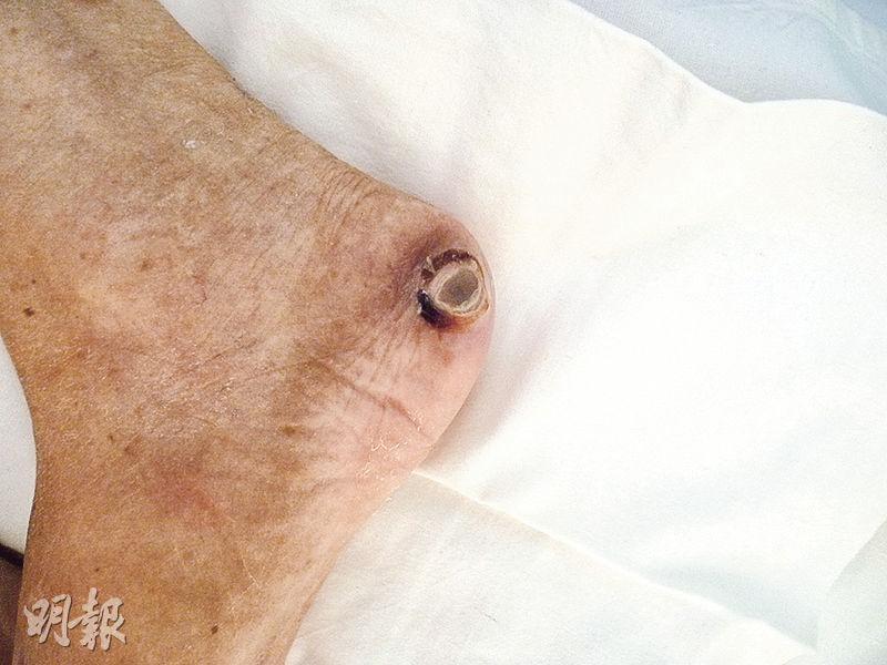 病人在骨頭突出位置長期受壓,會導致微細血管血液循環受阻,未能獲足夠營養,令皮膚組織受傷,形成壓瘡,壓瘡嚴重者可出現爛肉(見圖,為腳部)。(瑪嘉烈醫院提供)