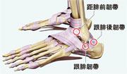 外側韌帶——足踝關節外側只三條韌帶,且並不穩固,所以進行多跳動或突然轉向的運動時,容易扭傷,令韌帶發炎,嚴重可導致韌帶撕裂。