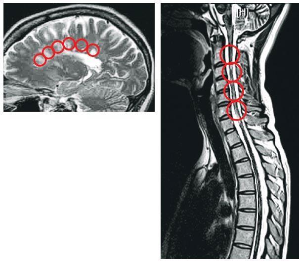 香港多發性硬化症學會義務秘書、醫生鄭永豪說,醫生可透過磁振造影(MRI)觀察到病人的腦部、脊髓有沒有受損的「髓鞘」組織,一旦出現受損組織,MRI中會顯出圖中的白光點(紅圈示),亦即一般俗稱的硬塊。(香港多發性硬化症學會提供)