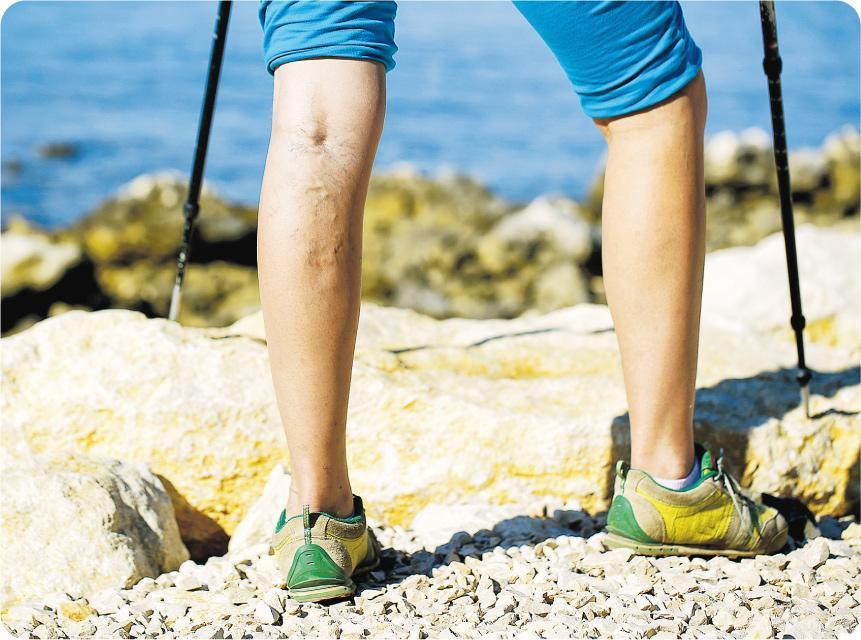 腳現青筋——靜脈曲張是因為血管壁的倒流瓣無法正常開合,血液積聚在靜脈內,形成「青筋」。(zlikovec@iStockphoto)