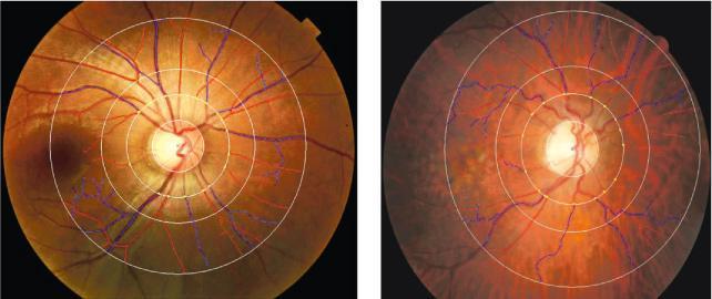 視網膜和腦部的血管構造及生理特徵相似,利用儀器進行「光學相干斷層掃描血管造影術」,可觀察視網膜血管的形狀,分析腦部退化情况。正常的視網膜血管較多、較直(左圖),若病人腦部退化,腦細胞逐漸死亡,視網膜的血管會變得彎曲、數量減少(右圖)。(中大醫學院提供)