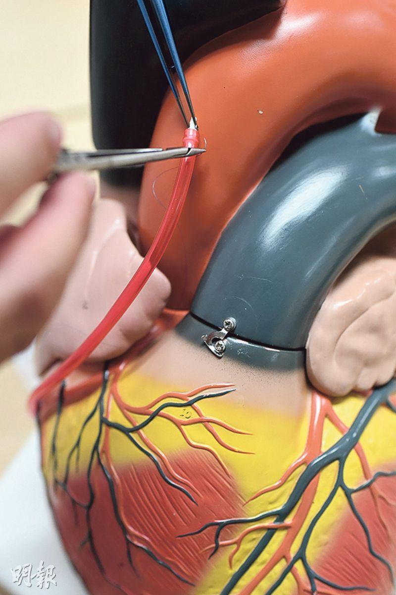 當冠狀動脈出現複雜的阻塞情况,搭橋手術是其中一個治療方法。醫生會從病人胸腔及腿部取出血管,用作心臟血管繞道(圖),跨過閉塞的冠狀動脈,改變血液流通路線,增加心臟血液供應。(賴俊傑攝)