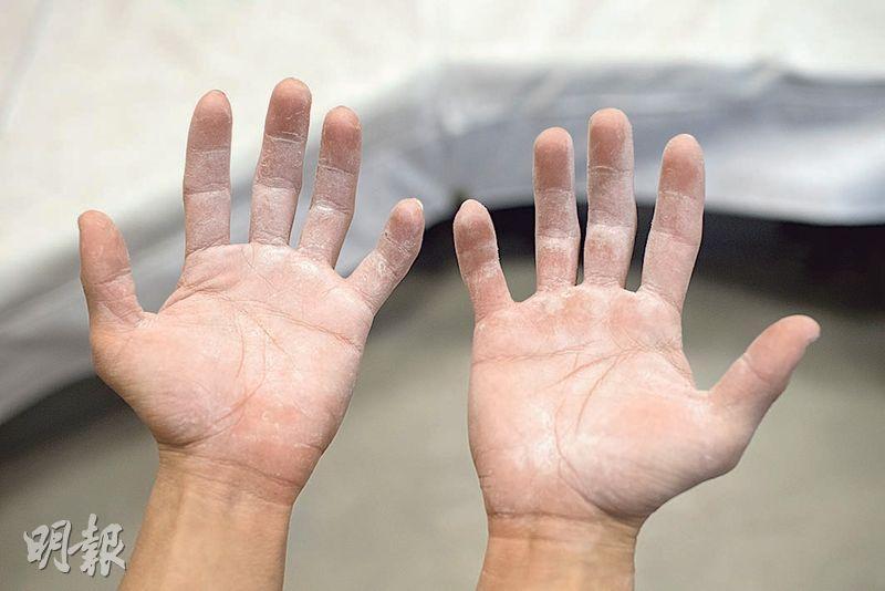 陳翔志攀石前,雙手會沾上點減少出手汗的鎂粉,他亦因攀石而長手繭。(鄧宗弘攝)