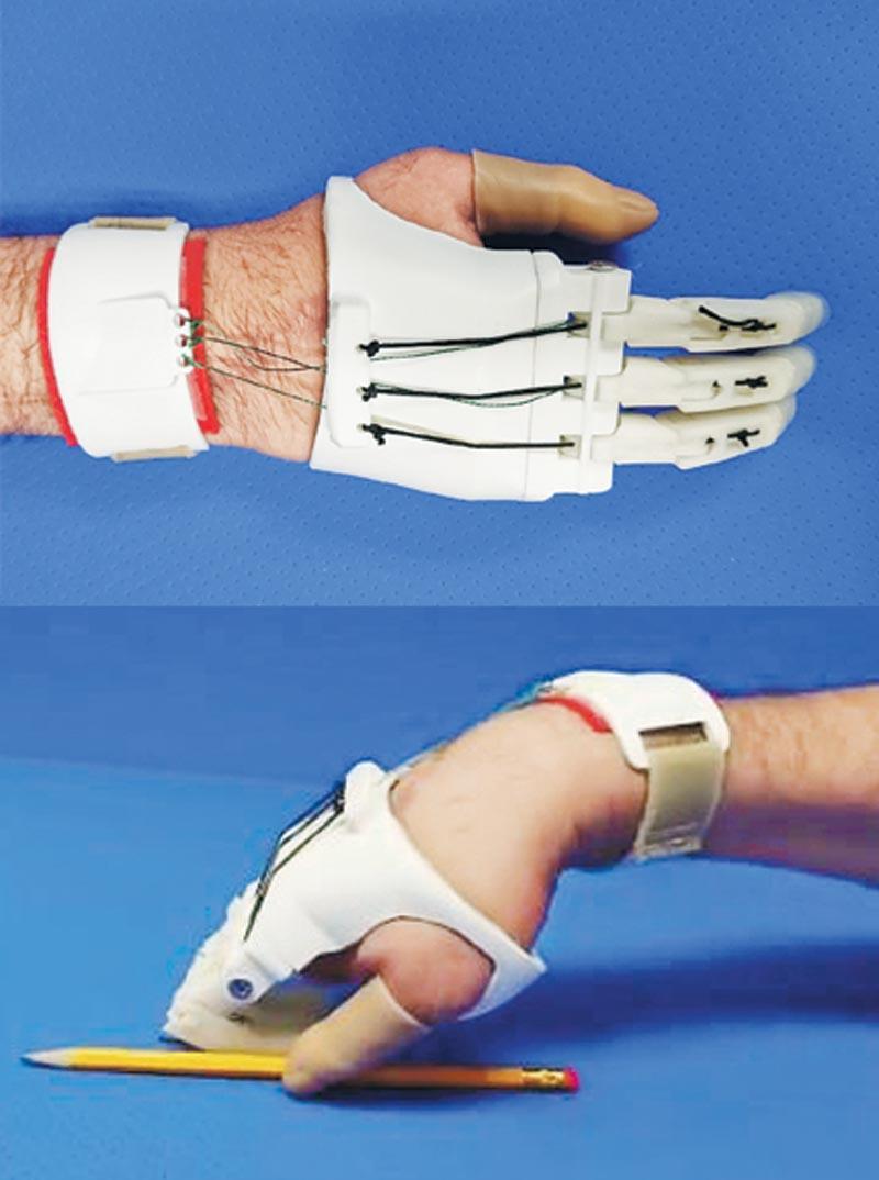 利用立體打印技術製作的上肢義肢。