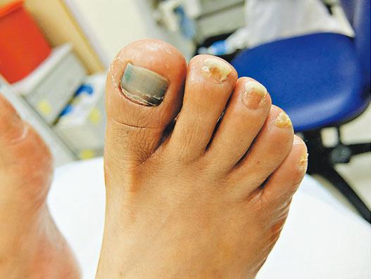 部分手足症候群患者腳甲剝離,令髒物有機會藏進腳甲內變黑。(威爾斯親王醫院提供)