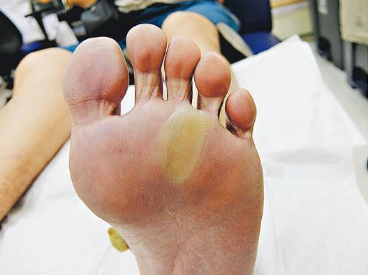 部分手足症候群患者腳板出現水泡,如病人自行弄穿水泡有機會發炎。(威爾斯親王醫院提供)