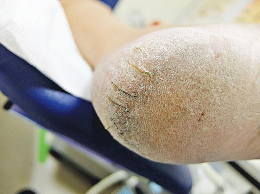 部分手足症候群患者腳跟龜裂,多會獲處方含尿素的潤膚膏,有助改善情况。(威爾斯親王醫院提供)