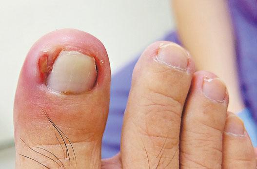 部分手足症候群患者出現陷甲,趾甲陷入肉內,造成出血和劇痛。(威爾斯親王醫院提供)