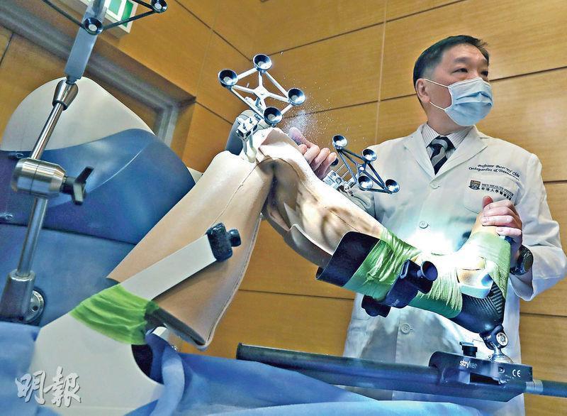 港大引機械臂換關節 準確度98% 減住院時間翻修率 瑪麗擬四成手術轉用
