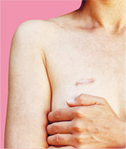 乳癌割多啲 穩陣啲? 切局部再電療 保命保乳房
