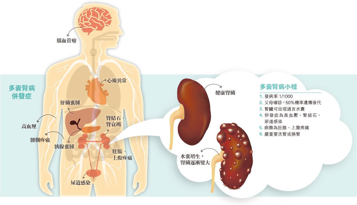 控血壓減換腎風險 遺傳泡泡腎 千人一中招