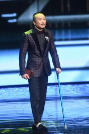 鄭中基因拍戲受傷,今晚要撐拐杖出席頒獎禮。(攝影:娛樂組)