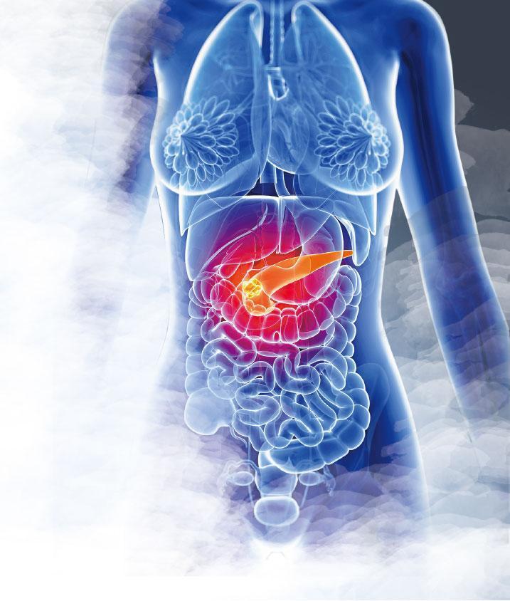 截擊超惡胰臟癌 高危族驗定基因 兩近親確診 家人風險高7倍
