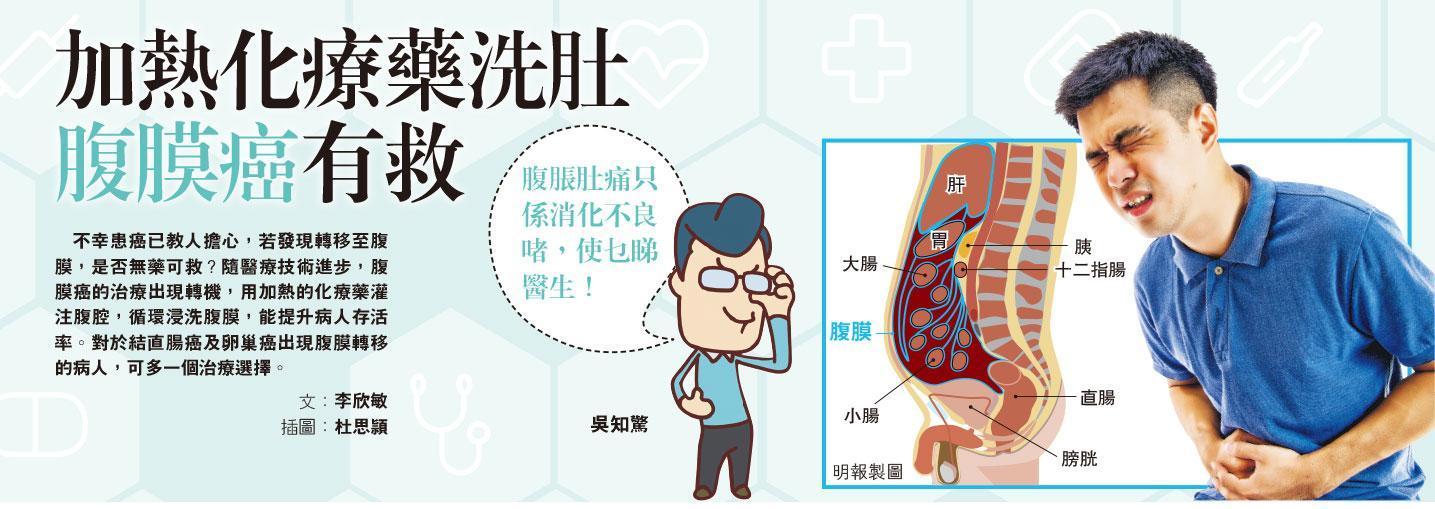 加熱化療藥洗肚 腹膜癌有救