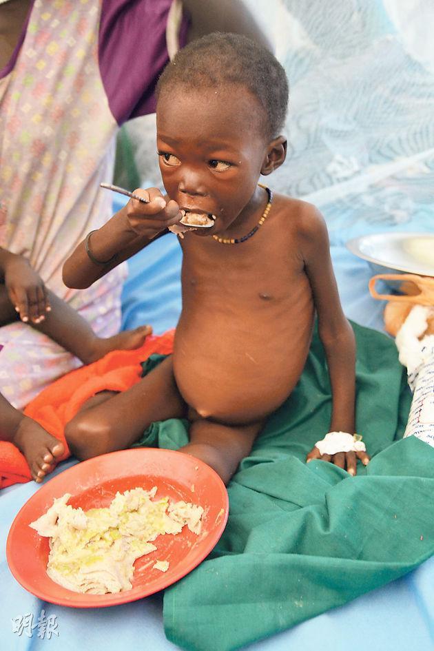 在南蘇丹上尼羅省首府馬拉卡爾(Malakal), 一個嚴重營養不良的兒童在聯合國兒童基金會伙伴機構的收容中心內進食高蛋白質營養餐。惡性營養不良病令這名兒童的身體嚴重水腫。(UNICEF提供)
