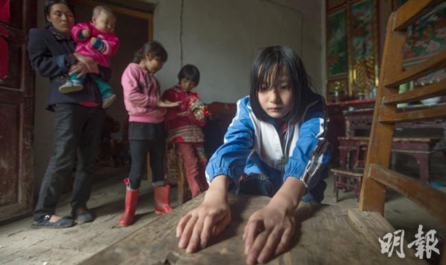 曾經的「大頭娃娃」宋悅悅(前右)向記者展示她的手,她的食指無法如常人般彎曲和伸直。她的妹妹(後排右一)和弟弟(左邊手抱者)都是吃貴價名牌奶粉長大。(鄧宗弘攝)