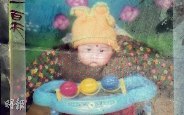 宋悅悅嬰兒時曾吃假奶粉,圖為她當時的照片,面部浮腫。(鄧宗弘翻攝)