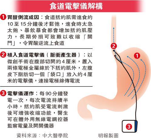 逆流 胃酸