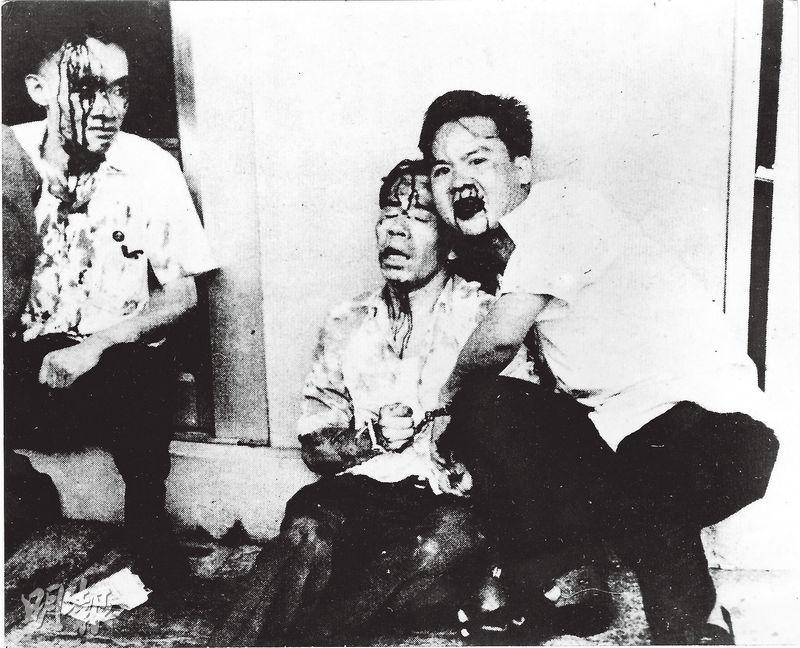 時任三聯書店副經理蕭滋(左起)、中南銀行襄理馮人虎和《經濟導報》記者許雲程在67年5月22日花園道事件中被警察打傷,血流披臉。(許雲程提供)