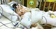 1歲嬰術後未入ICU昏迷 父質疑瑪麗疏忽  院方﹕醫生評估毋須入 已成立小組了解