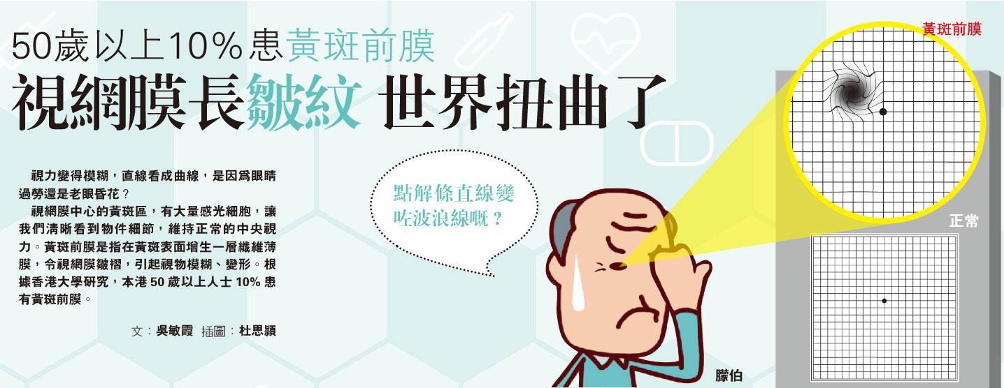 50歲以上10%患黃斑前膜 視網膜長皺紋 世界扭曲了